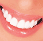 dentist in Safdarjung Enclave, dental implant clinic in south delhi, dental implant treatment in south delhi, best dentist in south delhi