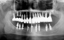 Dental Implant Treatment In India