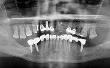 Dental Implants New Delhi
