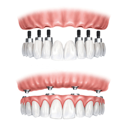 Dental Implant, Dental Implant Consultation, Dental Implant Clinic in South Delhi, Dental Implant Clinic in Delhi