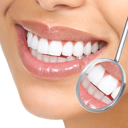 Teeth Cleaning, Dental Care, Advanced Dental center, Dentist in south delhi