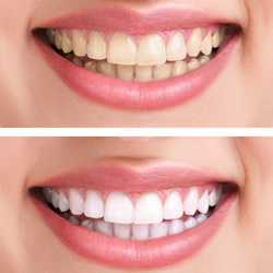 Teeth Whitening, Cosmetic Dentistry, Dental Implant Consultation, Professional Teeth Whitening, Dental Care, Advanced Dental center