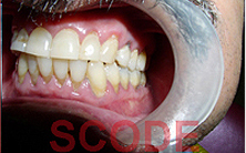 gingival2